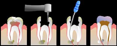 Wurzelbehandlung Grafik 1