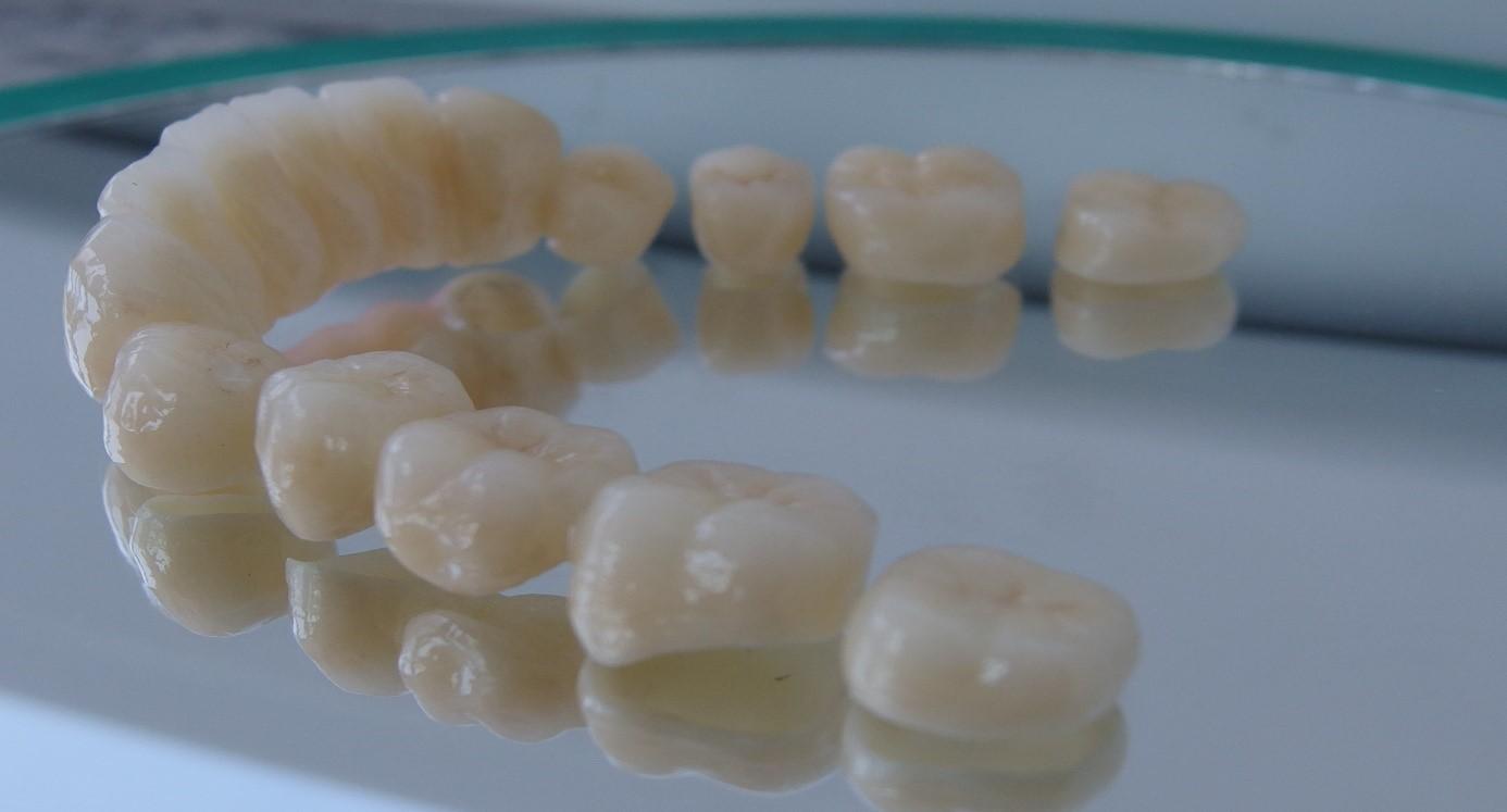 Zahnersatz Foto 1